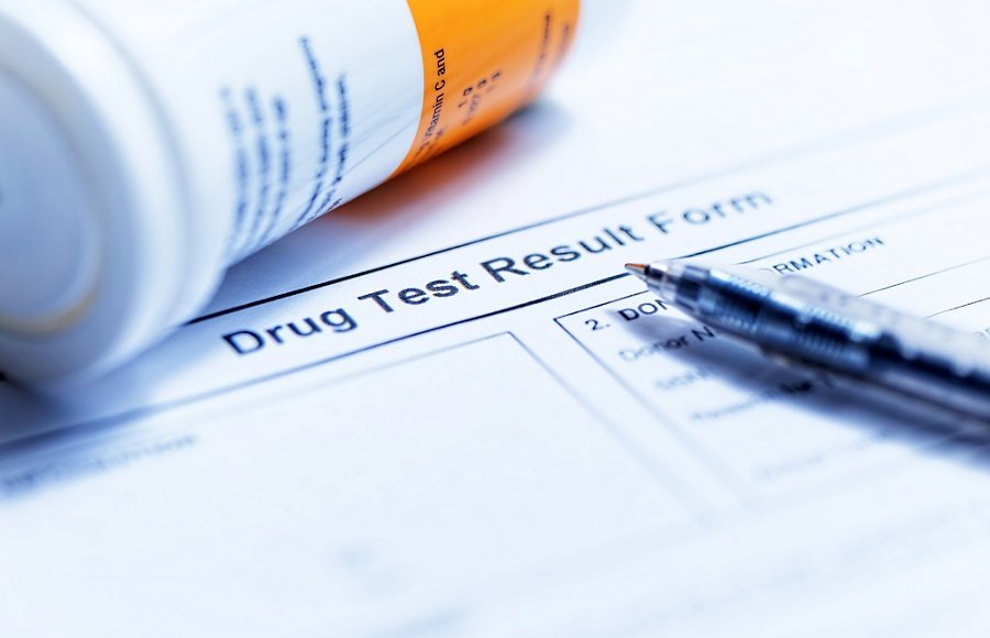 Drug test result form