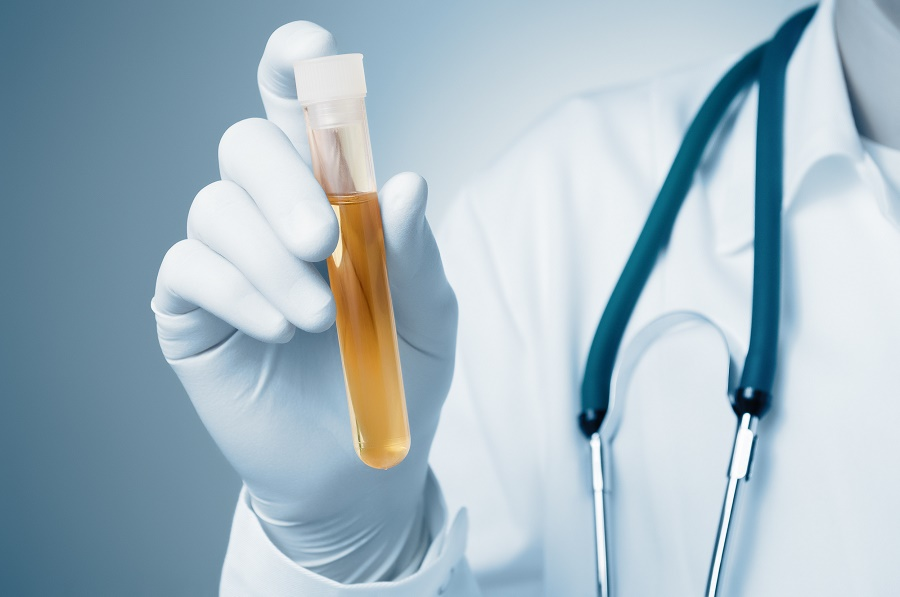 Why You Should Do a Random Drug Testing in Your Workplace