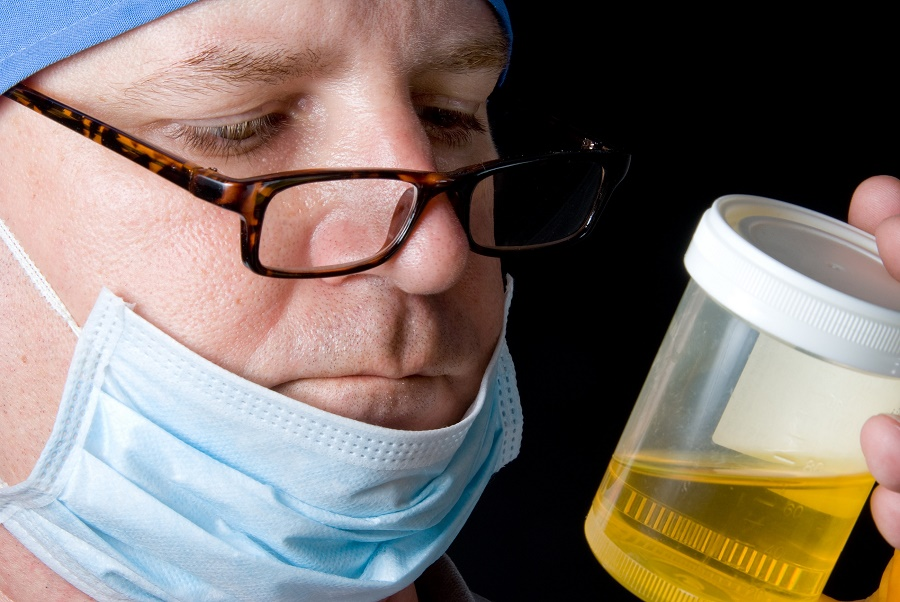 Doctor looking at urine sample cup
